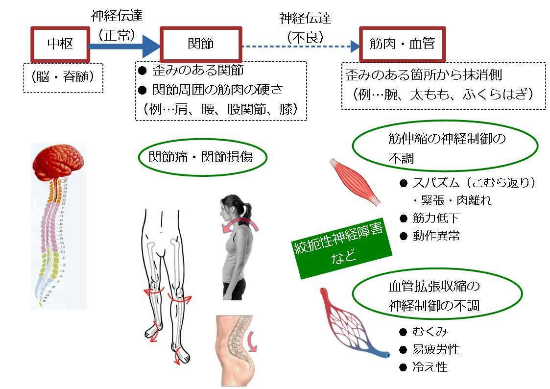 関節の歪み・変形の影響 初動負荷トレーニング 兵庫県宝塚市 かみたに接骨院 整骨院