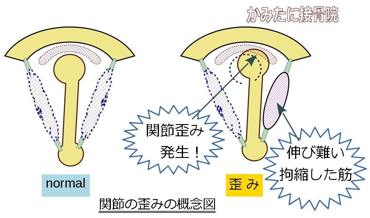関節の歪み モデル 模式図 初動負荷トレーニング 兵庫県宝塚市 かみたに接骨院 整骨院